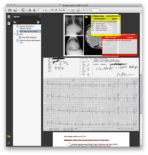 capture d'écran de PDF/H